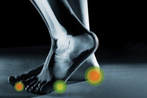 Τρέξιμο και πόνος στη φτέρνα: Παθήσεις και ασκήσεις (pics)