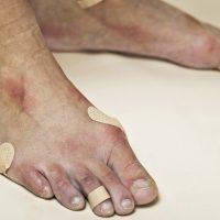 Πως να φροντίζετε τα πόδια σας μετά τις προπονήσεις και τους αγώνες
